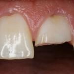 fractura dentara
