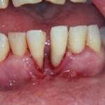 parodontozace_este_boala_parodontala