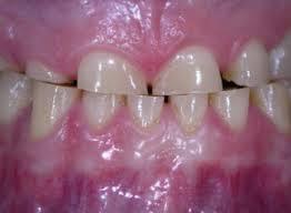 atritia dentara
