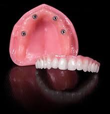 proteza totala maxilara ancorata de implante