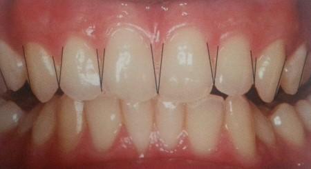suprafata dentara aparenta
