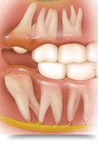 De ce raman dintii inclusi?