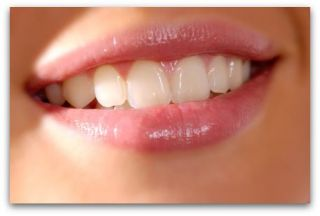 Parodontita marginală