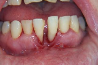 Parodontoza. Ce este boala parodontală?