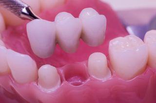Puntea dentară
