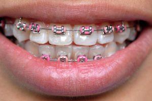 Clasificarea anomaliilor dento-maxilare