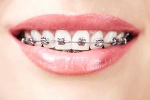 Aparatele ortodontice fixe