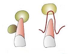 Chistectomie – chist rezidual mandibular
