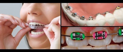 Estetica in ortodontie