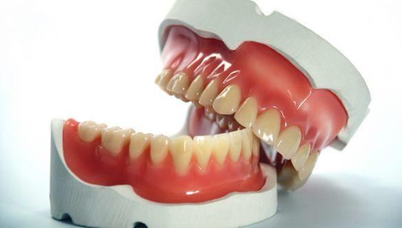 Totul despre mentinerea si stabilitatea protezei dentare