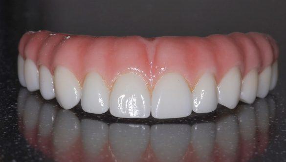 Proteza dentara – instructiuni