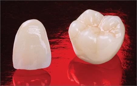 Coroane integral ceramice