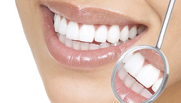Modificari de culoare ale dintilor vitali – cauze si tratament