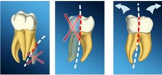 Metode chirurgicale ajutatoare tratamentului endodontic