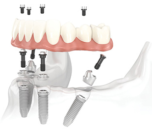 Fixarea suprastructurilor pe implante prin insurubare
