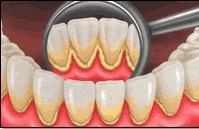Totul despre tartrul dentar