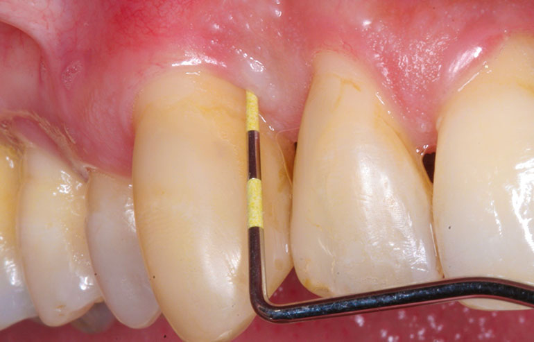 Chirurgia-parodontala