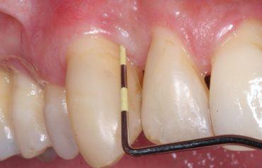 Chirurgia parodontala