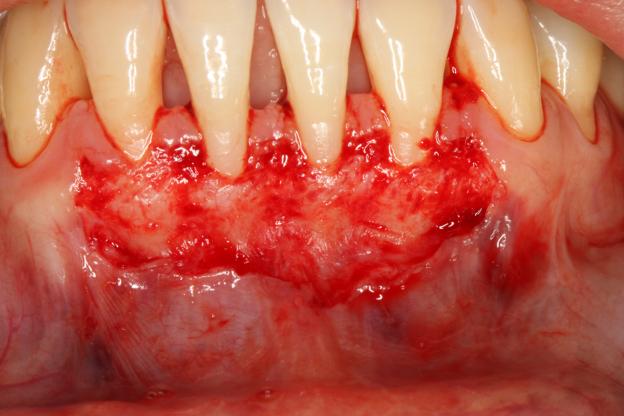 Chirurgia parodontala3