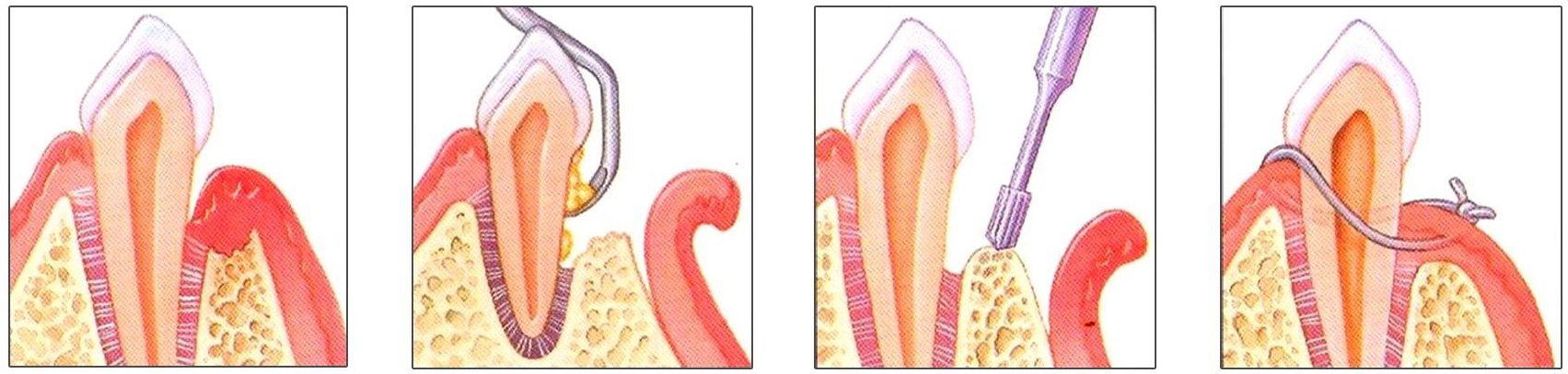 Chirurgia parodontala4