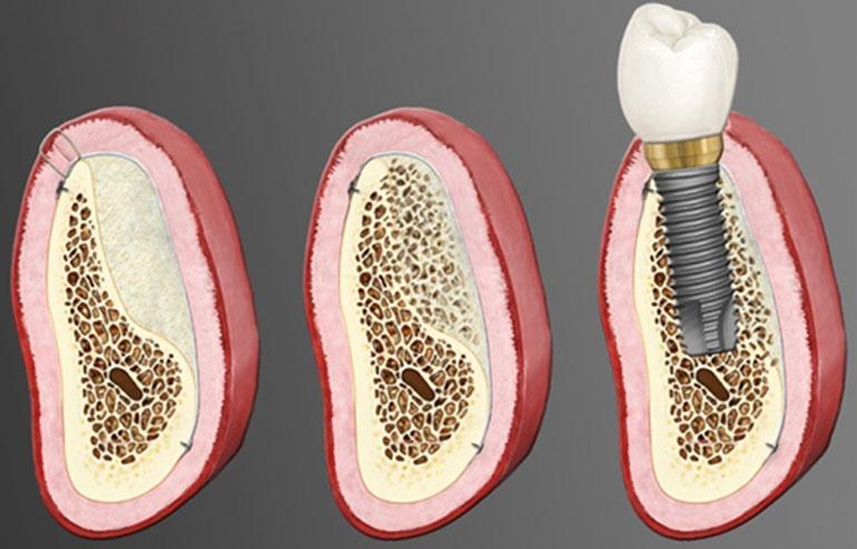 augmentare-dentara