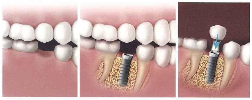 implantologie5