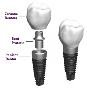 implantologie8